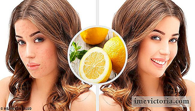 4 Natuurlijke home remedies om acne littekens te elimineren