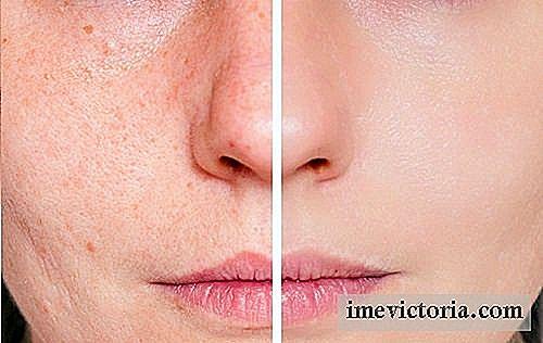 remedios caseros para las cicatrices dela cara
