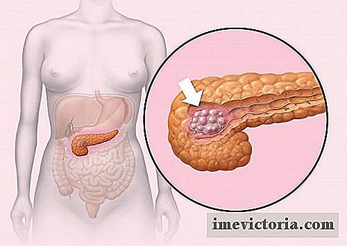 5 Early Signs for Cancer al pancreas