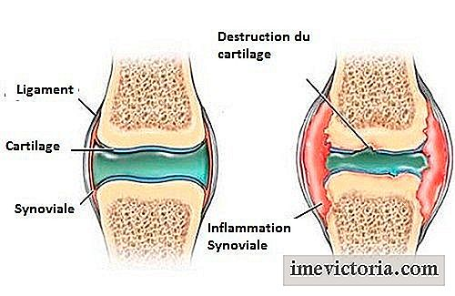 Medicamente antiinflamatoare nesteroidiene pentru dureri de spate inferioare