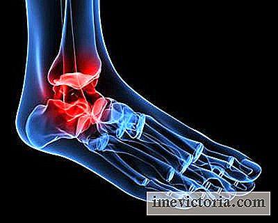artroza kotníku otok frecarea articulațiilor cu durere în picioare