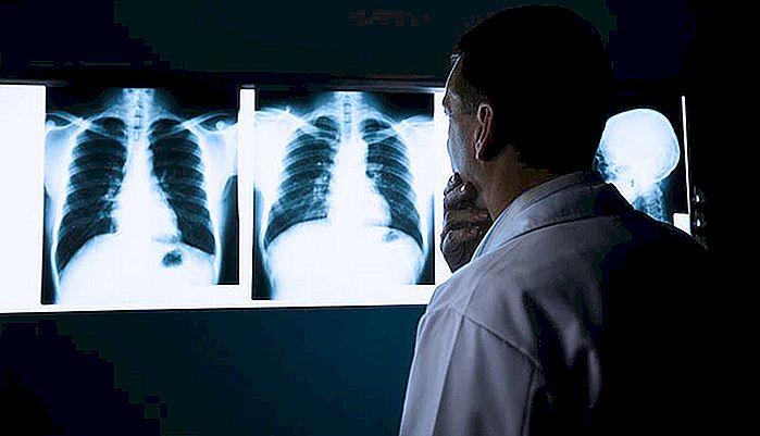 Verschillen Tussen Pneumonie En Tuberculose Nlimevictoriacom
