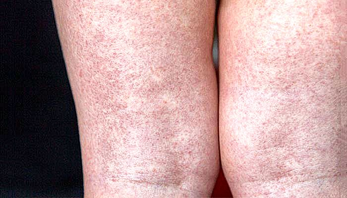 Escarlatin Symptomen Oorzaken En Behandeling Nlimevictoriacom