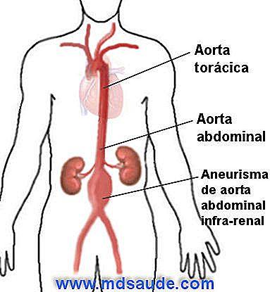 ABDOMINALE Aortenaneurese - Ursachen, Symptome und Behandlung - de ...
