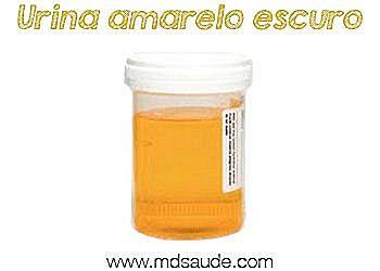 Zmeny Barvy Uriny Moce Zelene Fialove Oranzove Modre Cs