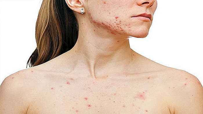 ACNE (CARBS AND SPINES) - Cauze și tratament