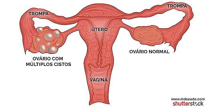 normal menstruationscyklus