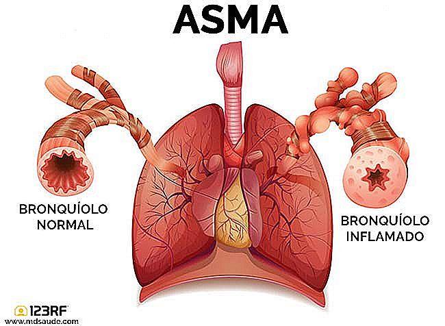 ASTHMA - Symptome, Diagnose und Behandlung - de.imevictoria.com