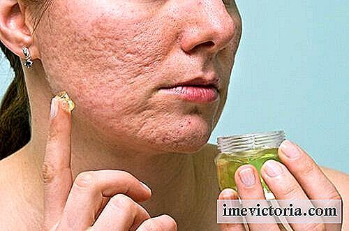 6 Home remedies om acne en mee-eters te elimineren