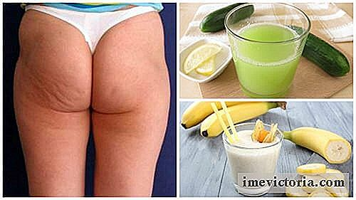 6 Alternative naturali per ridurre la cellulite