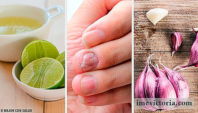 Home Remedies voor Nail Fungus